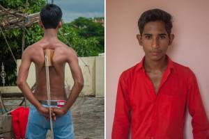 کتفهای باورنکردنی نوجوان هندی / تصاویر