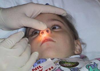 نحوه خارج کردن جسم خارجی از بینی در کودکان و بزرگسالان