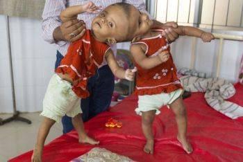 دوقلوهای بهم چسبیده ی بنگلادشی