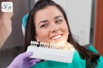خدمات دندانپزشکی و زیبایی دندان شامل چیست؟