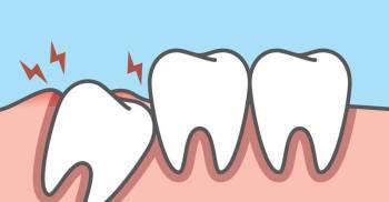 دندان عقل نهفته / دندان عقل نیمه نهفته / جراحی